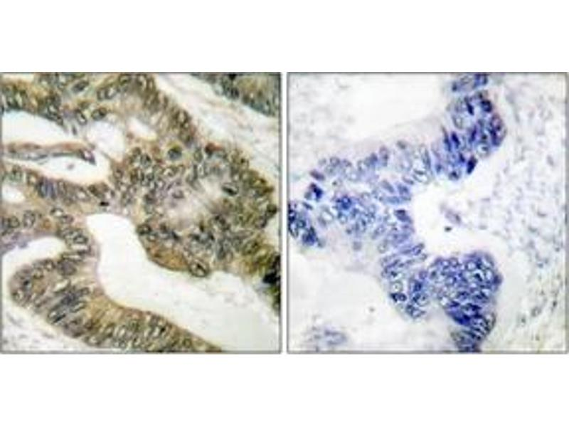 Immunohistochemistry (IHC) image for anti-Adenomatous Polyposis Coli (APC) (AA 2794-2843) antibody (ABIN1533213)