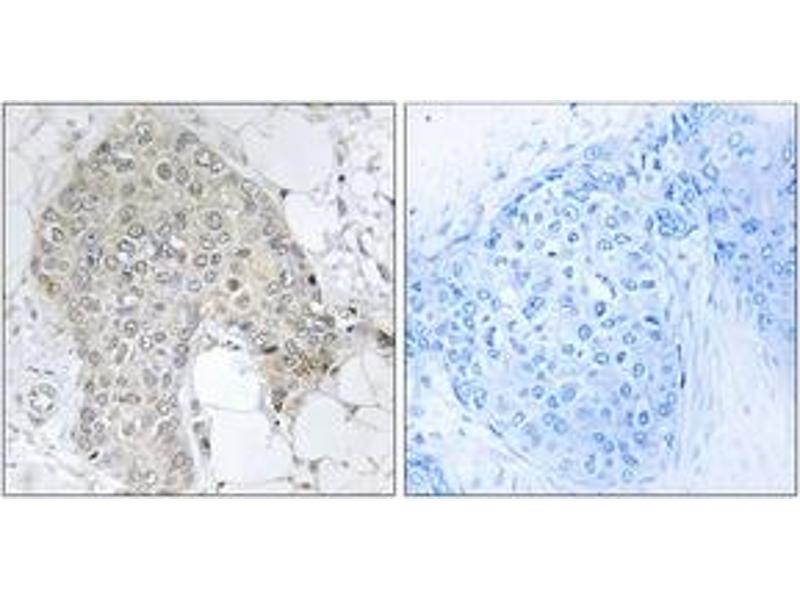 Immunohistochemistry (IHC) image for anti-Protein Phosphatase 1, Regulatory (Inhibitor) Subunit 2 (PPP1R2) (AA 86-135) antibody (ABIN1532721)