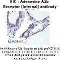 anti-Adenosine A2b Receptor antibody (ADORA2B) (Internal Region)
