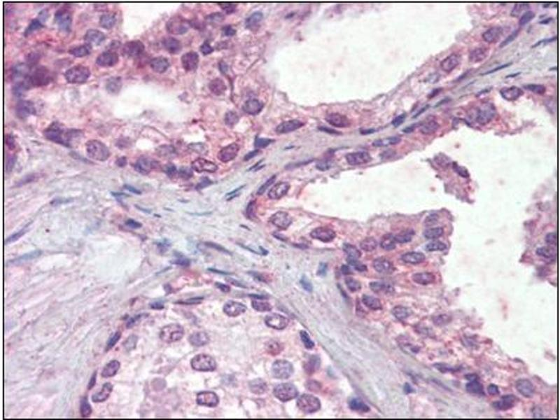 Immunohistochemistry (Paraffin-embedded Sections) (IHC (p)) image for anti-IFNAR2 antibody (Interferon alpha/beta Receptor 2) (Internal Region) (ABIN614976)
