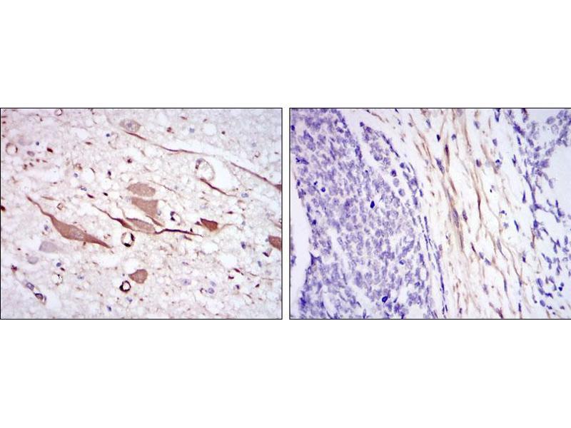 Immunohistochemistry (IHC) image for anti-Heat Shock 27kDa Protein 1 (HSPB1) antibody (ABIN4880328)