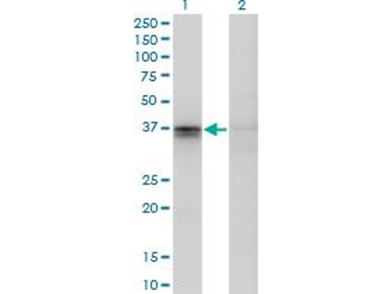 Image no. 6 for anti-F11 Receptor (F11R) (AA 1-299) antibody (ABIN565503)