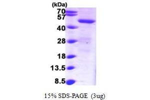Image no. 1 for Sorting Nexin 1 (SNX1) (AA 146-522) protein (His tag) (ABIN6386600)