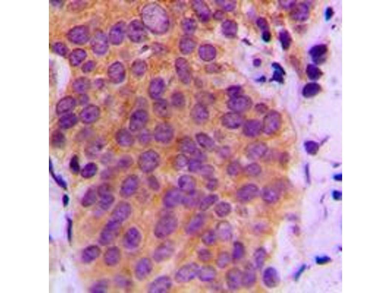Immunohistochemistry (IHC) image for anti-Mitogen-Activated Protein Kinase Kinase 4 (MAP2K4) (pSer80) antibody (ABIN2706552)