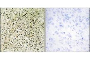 Image no. 1 for anti-Deleted in Liver Cancer 1 (DLC1) (AA 61-110) antibody (ABIN2889732)