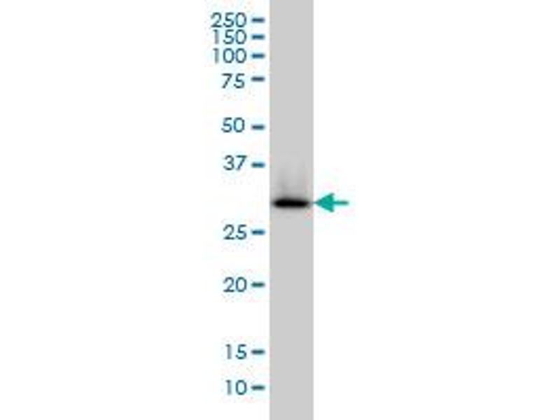 Western Blotting (WB) image for anti-Hydroxyacyl-CoA Dehydrogenase (HADH) (AA 205-314) antibody (ABIN561223)