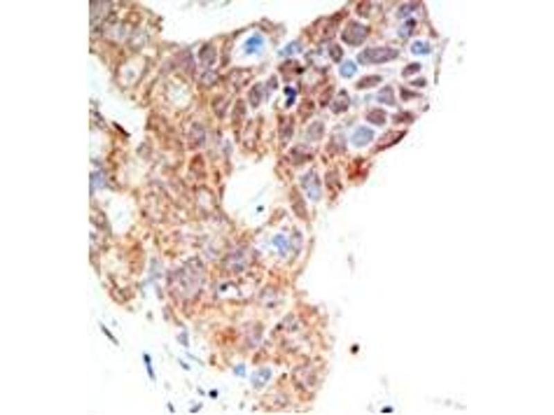 image for anti-Protein Arginine Methyltransferase 5 (PRMT5) (C-Term) antibody (ABIN356529)