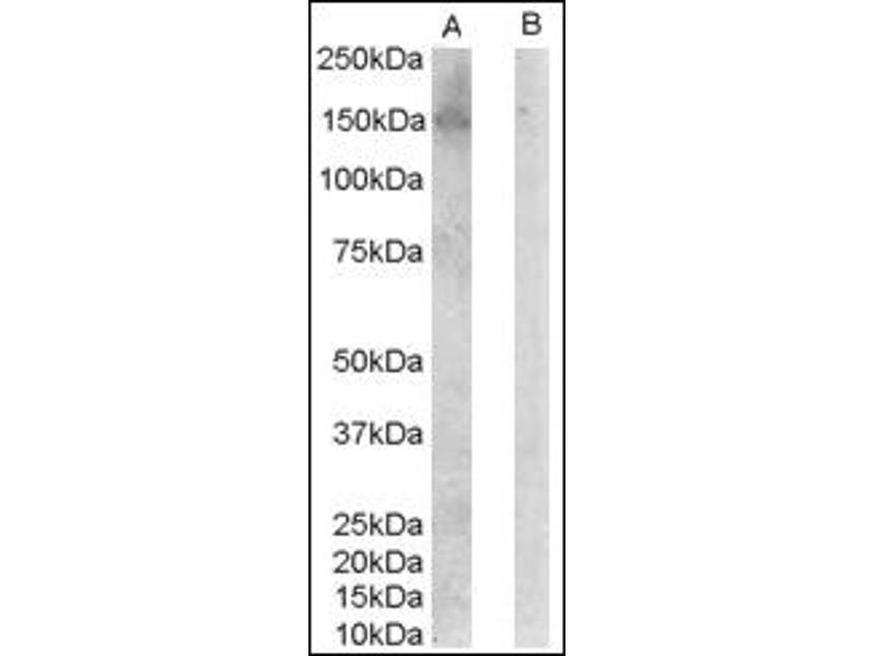 image for anti-ERBB3 Antikörper (V-Erb-B2 Erythroblastic Leukemia Viral Oncogene Homolog 3 (Avian)) (C-Term) (ABIN372474)