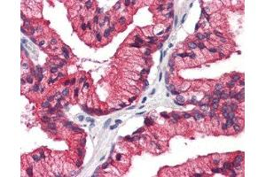 Immunohistochemistry (Paraffin-embedded Sections) (IHC (p)) image for anti-Receptor Accessory Protein 5 (REEP5) (C-Term) 抗体 (ABIN4349815)