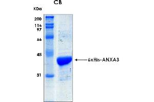 Image no. 1 for Annexin A3 (ANXA3) (AA 1-323) protein (His tag) (ABIN2703597)