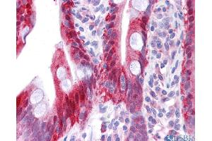 Immunohistochemistry (IHC) image for anti-NME1 antibody (Non-Metastatic Cells 1, Protein (NM23A) Expressed in) (N-Term) (ABIN2792090)