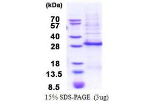 Image no. 1 for Distal-Less Homeobox 3 (DLX3) (AA 1-186) protein (His tag) (ABIN5853443)