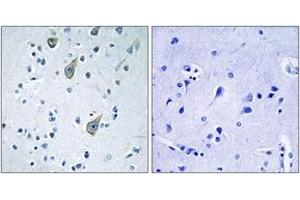 Image no. 1 for anti-Frizzled Family Receptor 6 (FZD6) (AA 116-165) antibody (ABIN1535684)