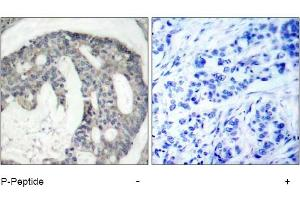 image for anti-ENOS antibody (Nitric Oxide Synthase 3 (Endothelial Cell)) (pSer1177) (ABIN319231)
