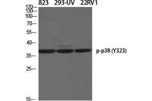 Image no. 2 for anti-Mitogen-Activated Protein Kinase 14 (MAPK14) (pTyr323) antibody (ABIN3182601)