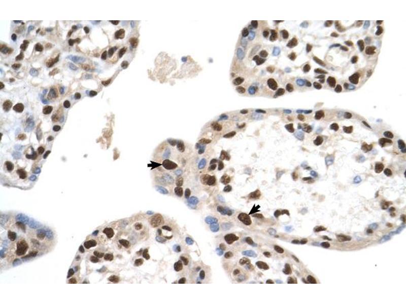 Image no. 2 for anti-SET Domain Containing 2 (SETD2) (N-Term) antibody (ABIN2783051)