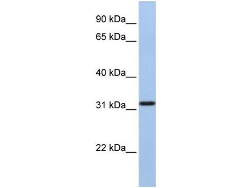 Western Blotting (WB) image for anti-Solute Carrier Family 25, Member 28 (SLC25A28) (C-Term) antibody (ABIN2781696)
