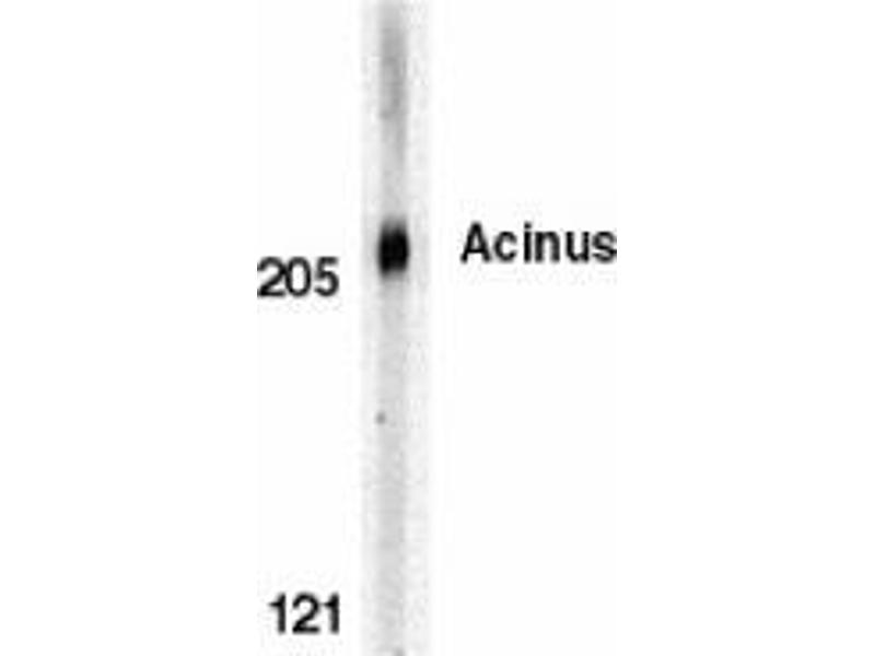 Western Blotting (WB) image for anti-ACIN1 antibody (Apoptotic Chromatin Condensation Inducer 1) (C-Term) (ABIN499199)