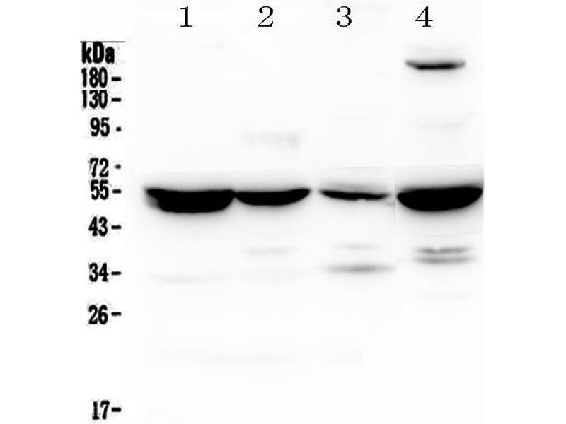 Western Blotting (WB) image for anti-Argininosuccinate Lyase (ASL) antibody (ABIN5518971)