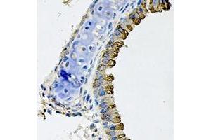 Image no. 1 for anti-Wingless-Type MMTV Integration Site Family, Member 5B (WNT5B) (full length) antibody (ABIN6006268)