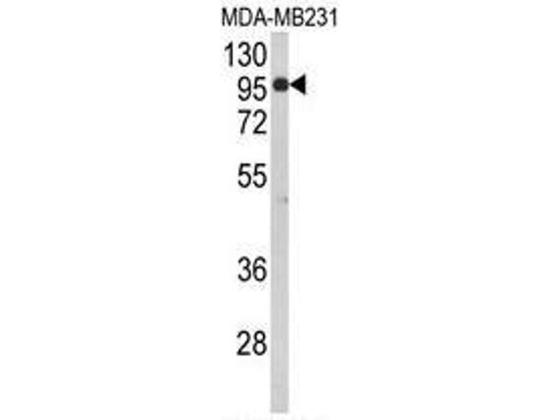 Western Blotting (WB) image for anti-Bromo Adjacent Homology Domain Containing 1 (BAHD1) (AA 751-780), (C-Term) antibody (ABIN950600)