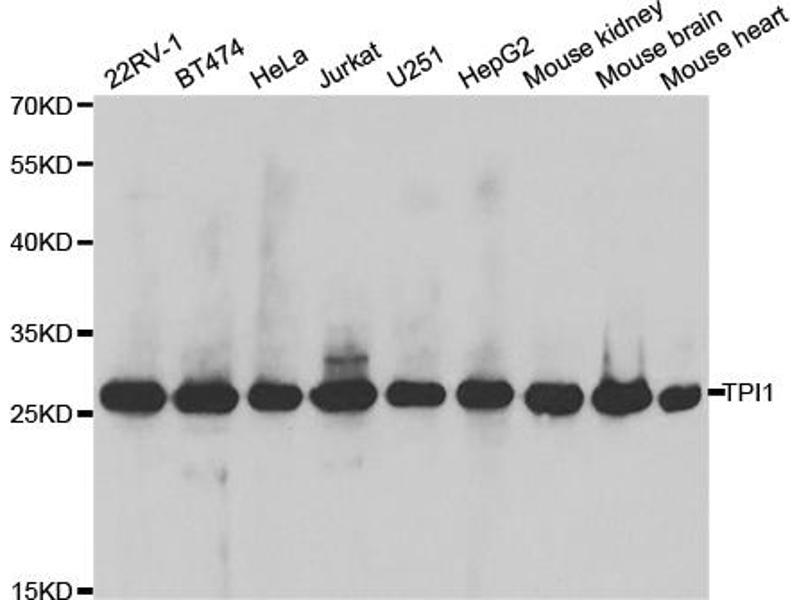 Image no. 2 for anti-Triosephosphate Isomerase 1 (TPI1) antibody (ABIN6569293)