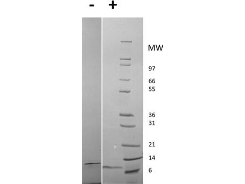 Image no. 1 for Epidermal Growth Factor (EGF) protein (ABIN6699802)