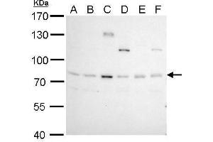 Image no. 1 for anti-B-Cell CLL/lymphoma 6 (BCL6) (Internal Region) antibody (ABIN2855012)