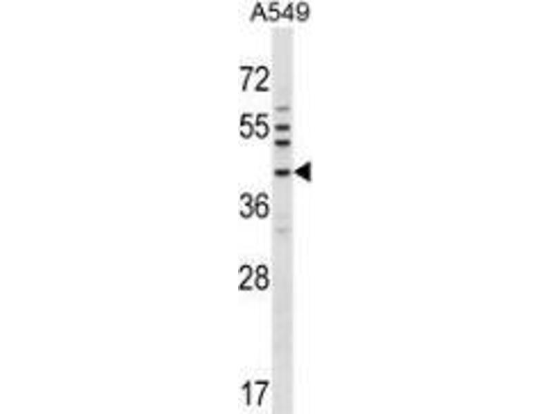 Western Blotting (WB) image for anti-NK6 Homeobox 1 (NKX6-1) (AA 284-314), (C-Term) antibody (ABIN953718)