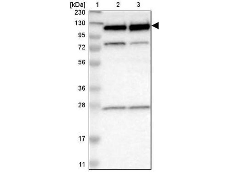 Western Blotting (WB) image for anti-RNA Binding Motif Protein 5 (RBM5) antibody (ABIN4349633)