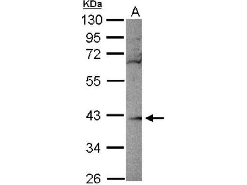 Western Blotting (WB) image for anti-Ribokinase (RBKS) (Center) antibody (ABIN4349573)