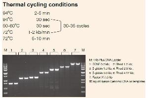 image for TransTaq®-T DNA Polymerase (ABIN5519582)