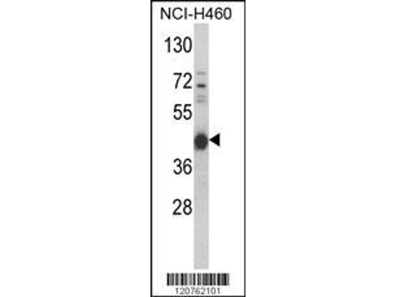 Western Blotting (WB) image for anti-PRKACA antibody (Protein Kinase A, alpha) (AA 67-94) (ABIN390798)