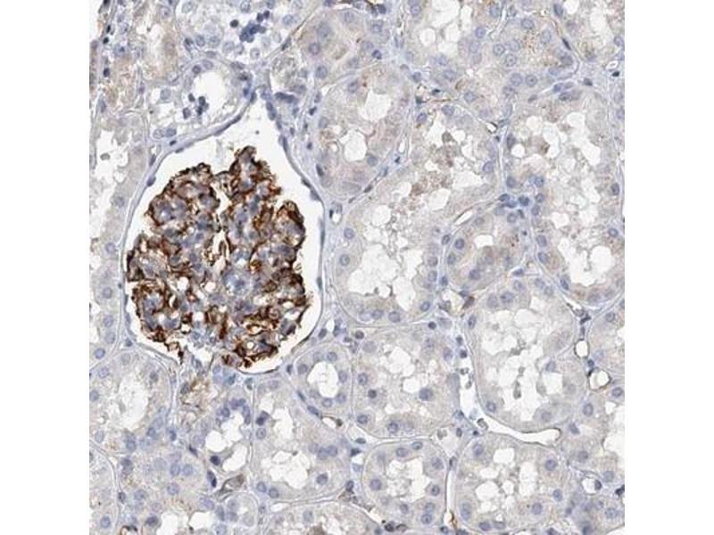 Immunohistochemistry (IHC) image for anti-Kin of IRRE Like (Drosophila) (NEPH1) antibody (ABIN4329071)