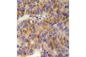Immunohistochemistry (Paraffin-embedded Sections) (IHC (p)) image for anti-MINPP1 antibody (Multiple Inositol-Polyphosphate Phosphatase 1) (AA 35-63) (ABIN953449)