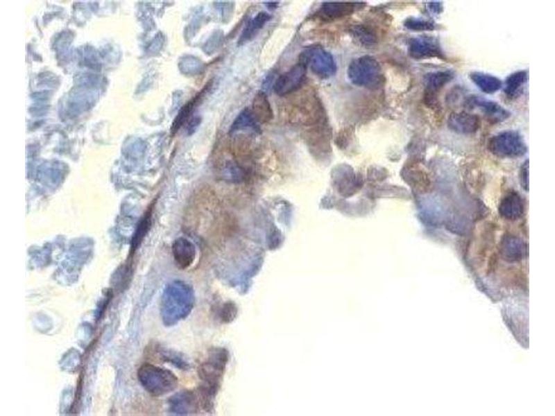 Immunohistochemistry (Paraffin-embedded Sections) (IHC (p)) image for anti-DFFA antibody (DNA Fragmentation Factor, 45kDa, alpha Polypeptide) (ABIN4305086)