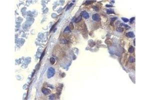 Immunohistochemistry (Paraffin-embedded Sections) (IHC (p)) image for anti-DNA Fragmentation Factor, 45kDa, alpha Polypeptide (DFFA) antibody (ABIN4305086)