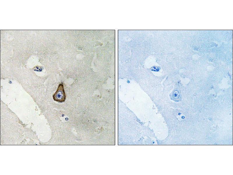 Image no. 1 for anti-Discs, Large Homolog 2 (Drosophila) (DLG2) antibody (ABIN1576085)