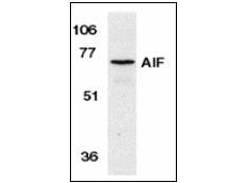 Western Blotting (WB) image for anti-Apoptosis-Inducing Factor, Mitochondrion-Associated, 1 (AIFM1) (N-Term) antibody (ABIN615300)