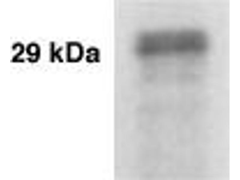 Western Blotting (WB) image for anti-Prostate Specific Antigen (PSA) antibody (ABIN152278)