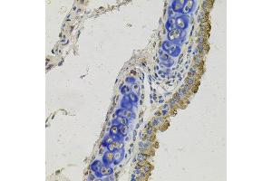 Immunohistochemistry (IHC) image for anti-Growth Arrest-Specific 6 (GAS6) antibody (ABIN4903738)