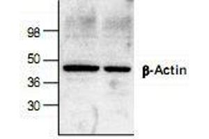 Western Blotting (WB) image for anti-beta Actin antibody (Actin, beta) (ABIN223341)