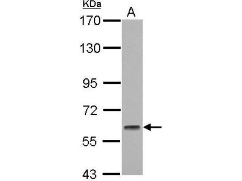 Western Blotting (WB) image for anti-Glucocorticoid Modulatory Element Binding Protein 1 (GMEB1) (Center) antibody (ABIN4315206)