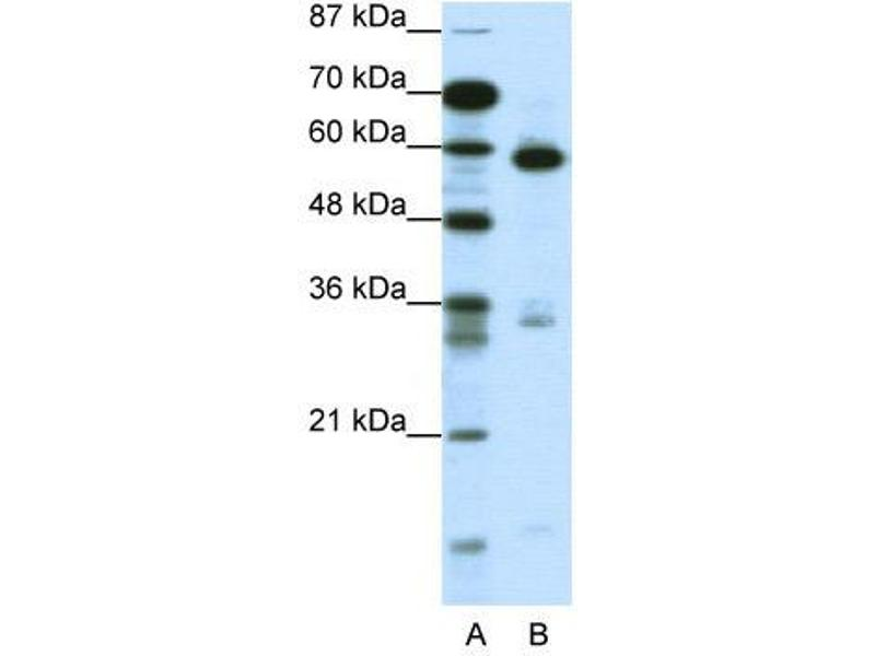 Western Blotting (WB) image for anti-Methyl-CpG Binding Domain Protein 1 (MBD1) (C-Term) antibody (ABIN183888)
