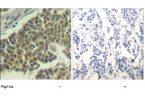 Image no. 1 for anti-Eukaryotic Translation Initiation Factor 2 Subunit 1 (EIF2S1) (Ser49) antibody (ABIN319386)