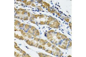 Image no. 2 for anti-Hyaluronan and Proteoglycan Link Protein 1 (HAPLN1) antibody (ABIN6141602)