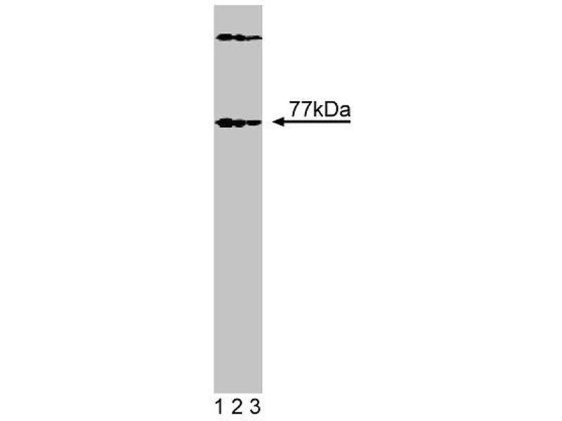 Western Blotting (WB) image for anti-Bruton Agammaglobulinemia tyrosine Kinase (BTK) (AA 2-172), (N-Term) antibody (ABIN968375)
