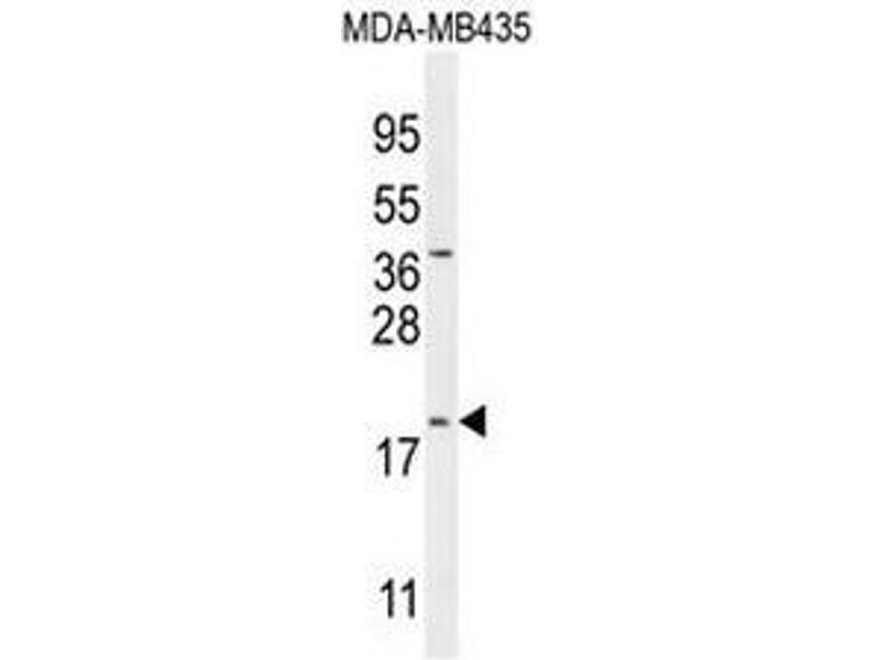 Western Blotting (WB) image for anti-CT173 (AA 51-80), (Middle Region) antibody (ABIN951717)