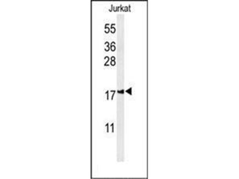 Western Blotting (WB) image for anti-IMMP2L antibody (IMP2 Inner Mitochondrial Membrane Peptidase-Like (S. Cerevisiae)) (AA 88-117) (ABIN952890)