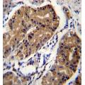anti-DCC antibody (Deleted in Colorectal Carcinoma) (AA 642-670)